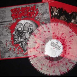 GENERAL SURGERY / BUTCHER ABC - Split - LP (Clear Splat.)
